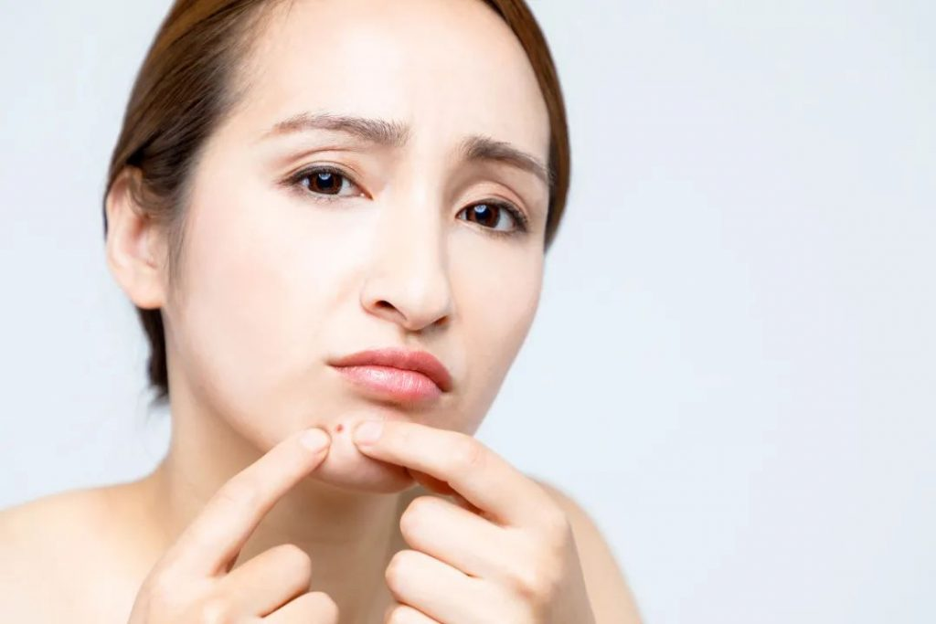 Should acne avoid food after all?