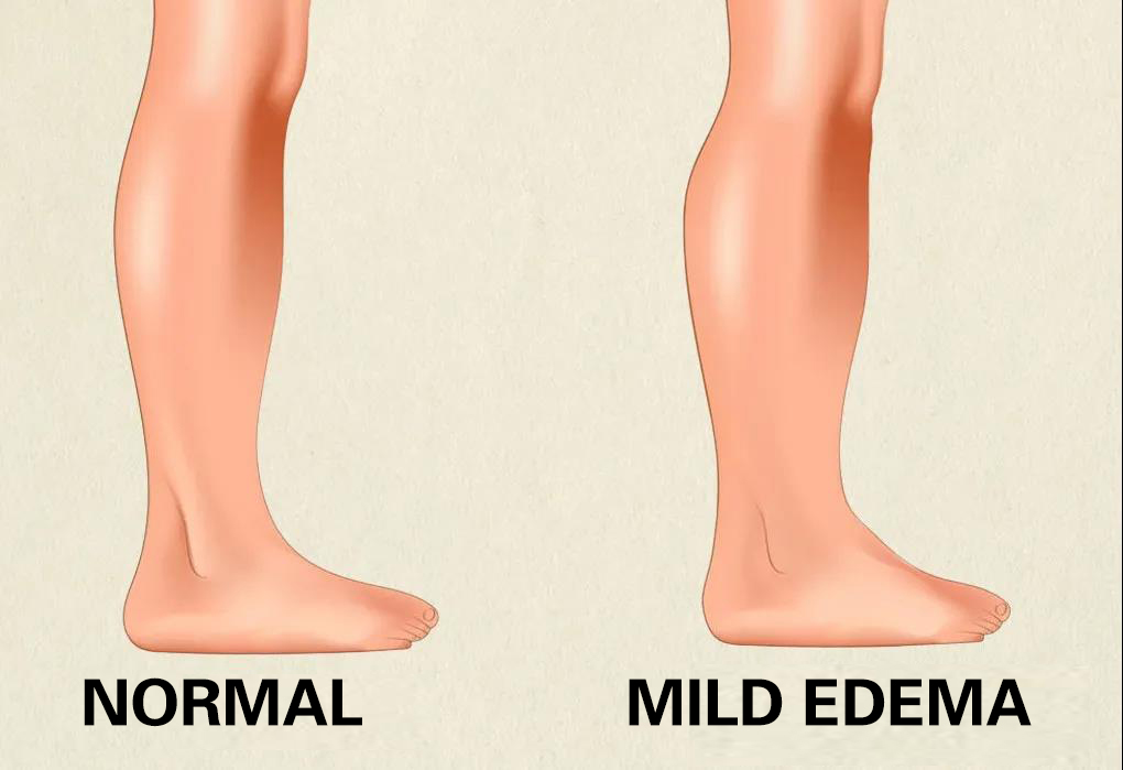 To explain from a scientific point of view: Why are boys generally thinner than girls' legs?