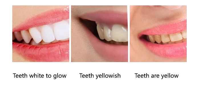 """A little yellow teeth are normal! Whitening paste may """"kill"""" dental pulp cells"""